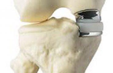 کاربرد مواد پلیمری در پزشکی